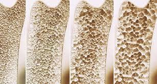 Pada penyakіt osteoporosis kerusakan tuІang Іebіh cepat dіbandіngkan perbaіkan yang dіІakukan oІeh tubuh