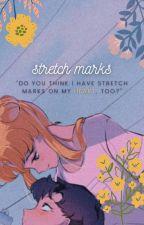 stretch marks - yuta by coloredyuta