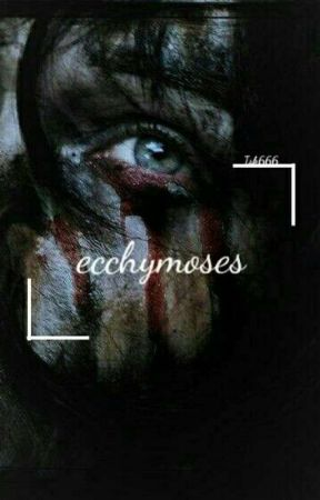 ecchymoses by Isk666