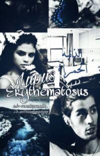 Lupus erythematosus||الذئبة الحمراء cover
