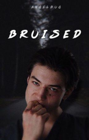BRUISED ➝ reddie | ✓ by angeIbug