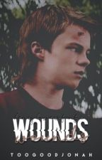WOUNDS ♚ henry bowers [it] by toogoodjonah