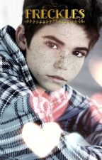 Freckles (Luke Ross) (ON HOLD/DISCONTINUED) by -babyroses-