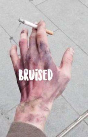 Bruised || B. U. AU || by PANICatthecafe