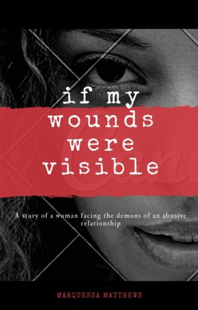 If My Wounds Were Visible by simplymarquessa