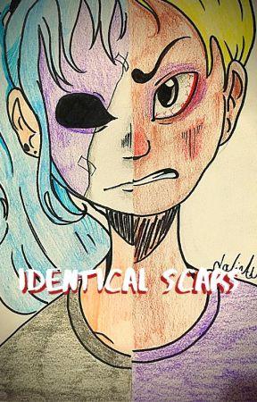 Identical Scars Sally Face Salvis by ChloeshyTheGreat