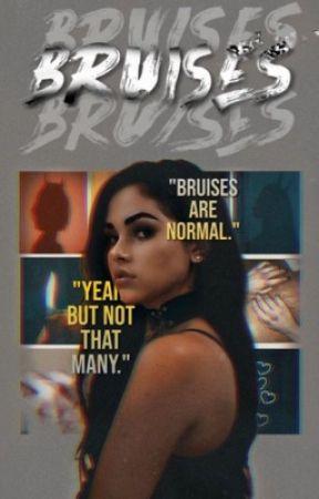 Bruises ꨄ︎ James Potter by nevillescourage
