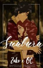 Sunburn by writingragdoll