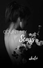 Count My Scars ➳ Teen Wolf [book 1] by akalei