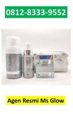 0812-8333-9552 Harga Paket Ms Glow Whitening & Skincare Di Pasuruan Jawa Timur by AgenResmiMsGlow