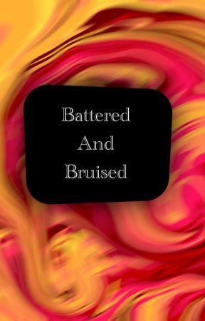 Mcsm Season 3 - Battered and Bruised by stillblockingthis
