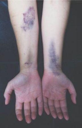 Bruised in Royal Colors by Spidersandfnaf