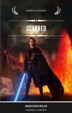 Scarred | Anakin Skywalker X Reader by maddisonskywalker