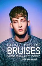 Bruises (BWWM) by contaminant