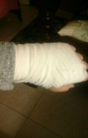 Broken Wrist today by sevin2015