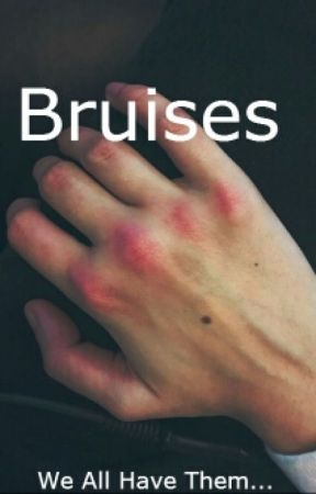 Bruises by nihilisticbuddah