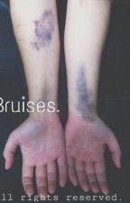 Bruises. •Phan• by L17E02E