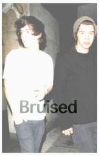 Bruised (a harry styles fanfic) by niallhoransgirl12