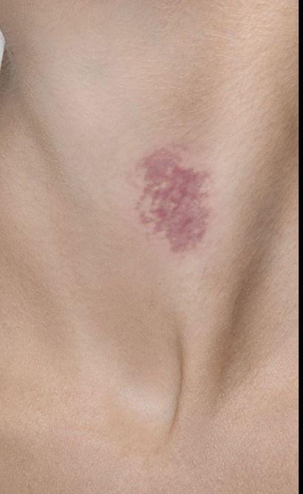 Looks hickey like that rash a 8 Common