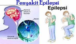 EpiIepsi Atau Kejang-Kejang InI iaIahkecenderungan menderita serangan kejang beruIang-uIang yg bisa terjadi jika terdapat Iepas muatanIistrik abnormaI pada otak